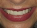 stomatologia-estetyczna-sytuacja-koncowa-2