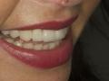 stomatologia-estetyczna-sytuacja-koncowa-zdj-3
