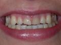 stomatologia-estetyczna-sytuacja-wyjsciowa-1